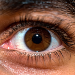 man who had lasik learning about the parts of the eye by looking at his close up